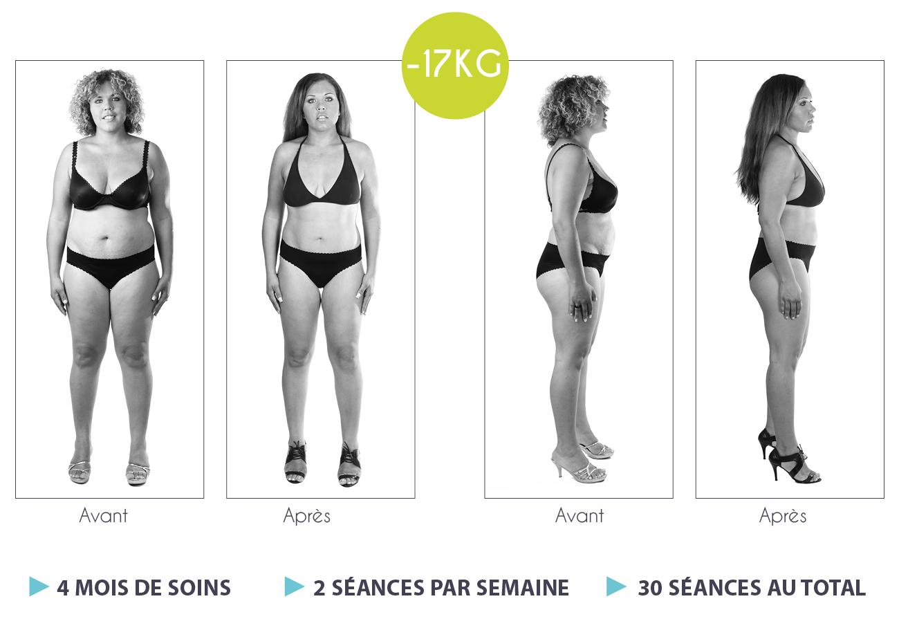 Résultats-Anne-Cali-perte-de-poids-moins-17kg-01-1