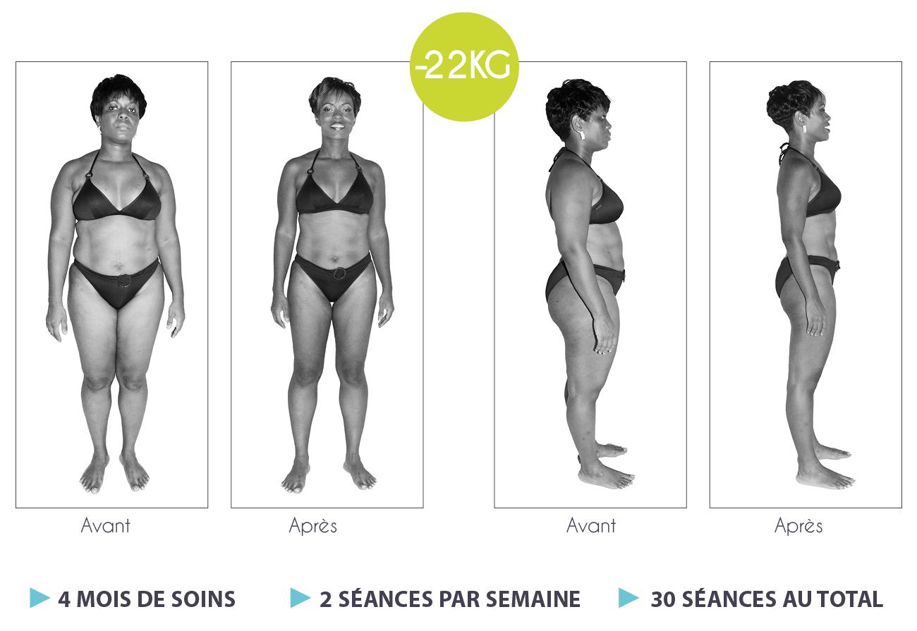 Résultats-Anne-Cali-perte-de-poids-moins-17kg-02-1