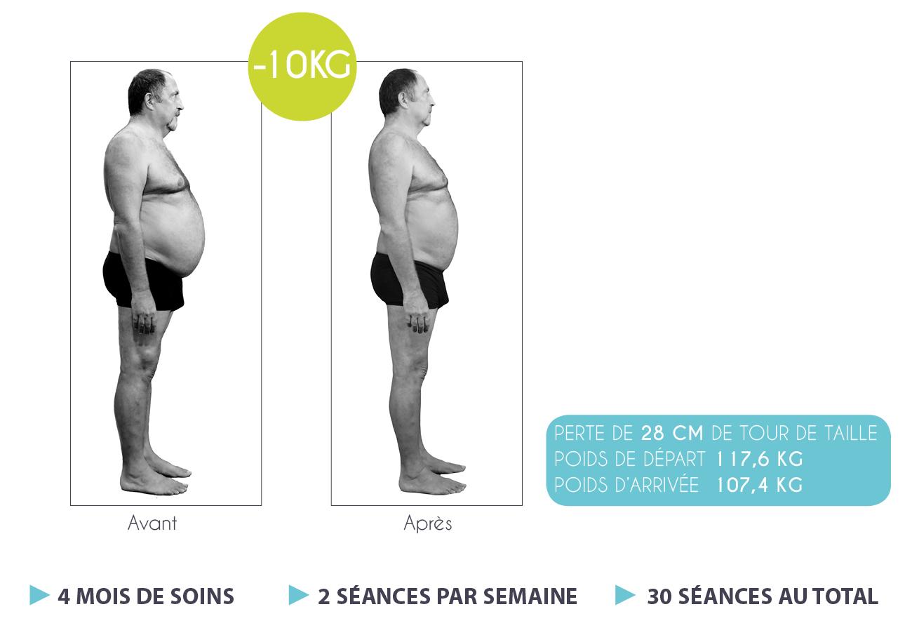 Résultats-Anne-Cali-perte-de-poids-moins-17kg-03-1