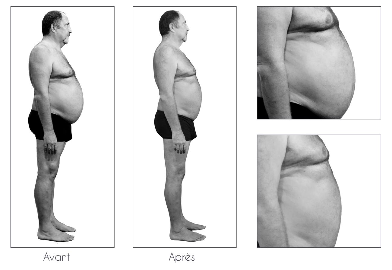 Résultats-Anne-Cali-perte-de-poids-moins-17kg-03-2