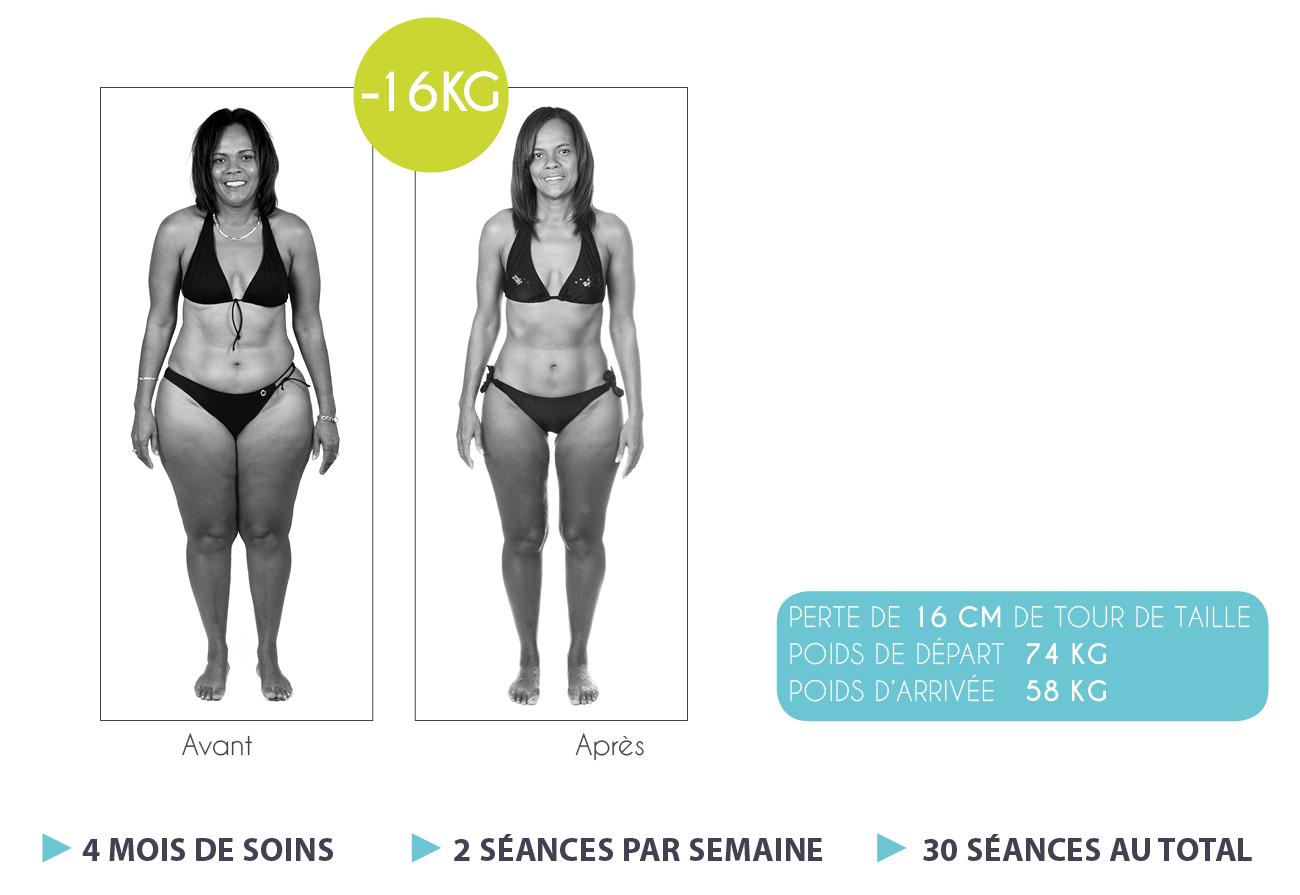 Résultats-Anne-Cali-perte-de-poids-moins-17kg-04-1