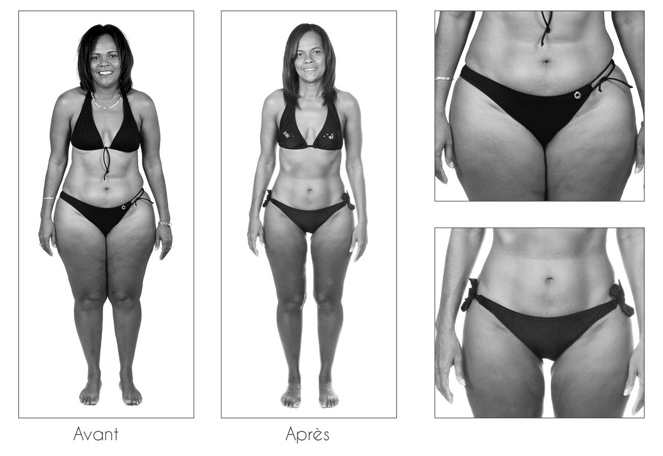 Résultats-Anne-Cali-perte-de-poids-moins-17kg-04-2