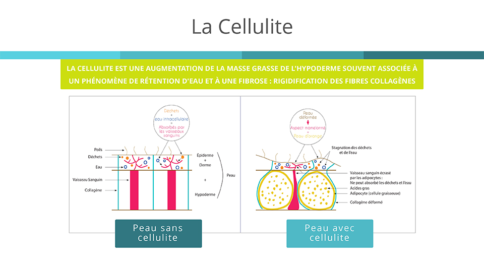 Déscription de la cellulite
